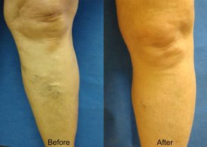 Leg Before and After