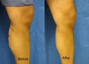 luppy leg before and after