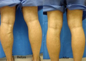 Leg treatment Before and After